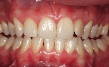 歯周病症例画像2